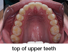top of upper teeth