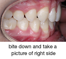 bite down and take a picture of right side